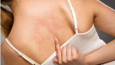 How to Treat Acne on Body: Most Effective Remedies